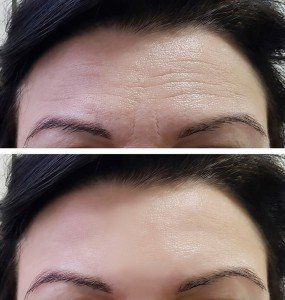 Before & After Botox Injections at Milwaukee Medical in Greenfield, WI