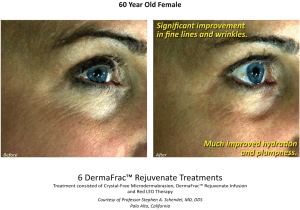 Before & After DermaFrac Skin Rejuvenation