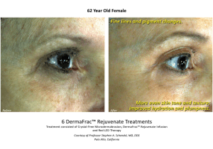 Before & After DermaFrac Skin Rejuvenation Injections