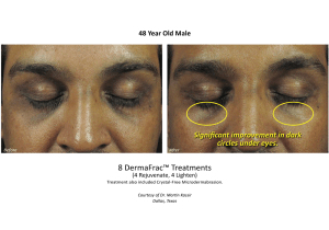 Before & After DermaFrac Skin Rejuvenation Treatments